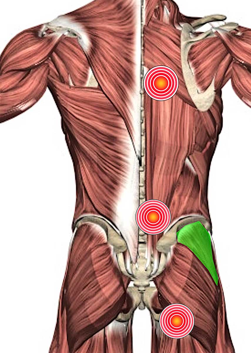 Rücken - Triggerpunkte